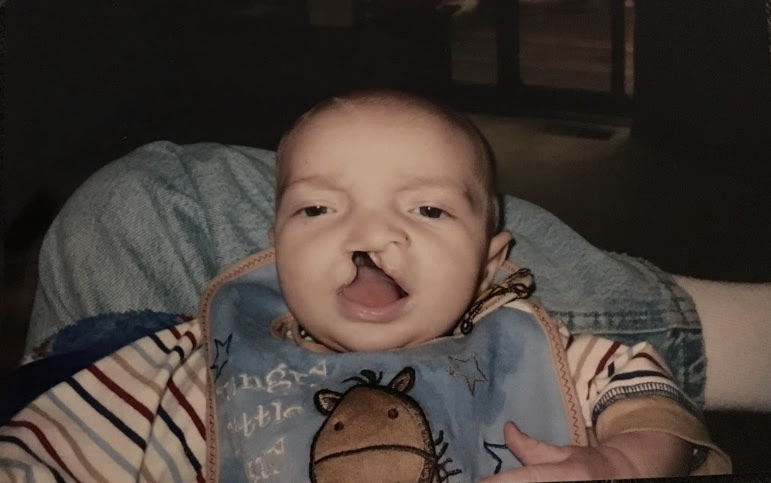 My little brother when he was about 2 months old before his first surgery. His surgeon said that this was the widest cleft lip and palette he has seen.